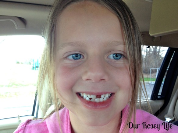 1 lost tooth